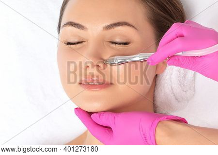 The Cosmetologist Makes The Procedure Microdermabrasion On The Nose Of A Beautiful Girl In A Beauty