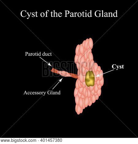 Parotid Salivary Gland Cyst. The Structure Of The Parotid Salivary Gland. Vector Illustration On Iso