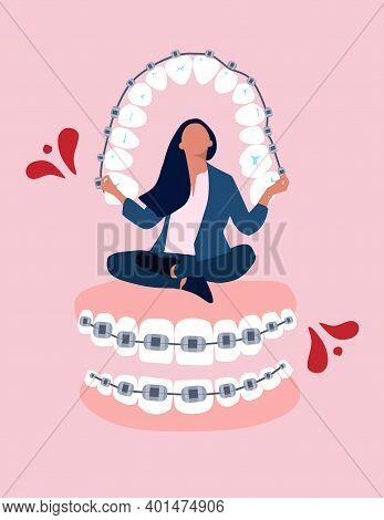 Girl Sitting And Meditating On Big Dental Braces On Teeth. Orthodontics Retainer Or Aligner. Bite Co
