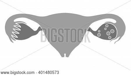 Iinternal Organs Of Women. Uterus, Ovaries And Fallopian Tubes. Illustration, Flat Design. Isolated