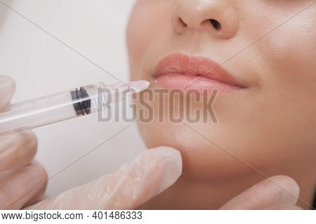 Cropped Close Up Of A Woman With Beautiful Sexy Lips Getting Lip Augmentation At Cosmetology Clinic.