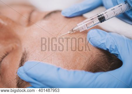 Close Up Cropped Shot Of A Professional Cosmetologist Using Syringe With Face Filler, Doing Cosmetic