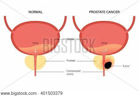 Prostate Cancer Vector Logo For Clinic. Normal Bladder And Oncology Problem. Tumor In Male Reproduct