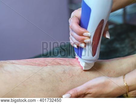 A Beautician's Hands Apply Hot Pink Wax To A Woman's Leg For Hair Removal In A Beauty Salon. Waxing.