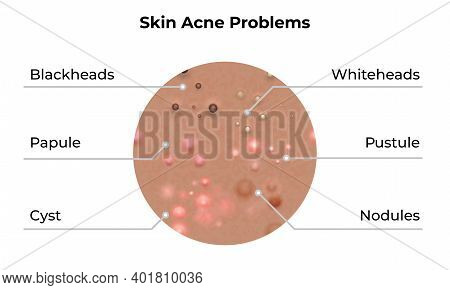 Skin Acne Types And Face Pimples For Dark Skin Type, Vector, Skin Care Problems Treatment. Skin Acne