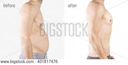 Man Weight Fat Loss Before After.  Belly Fatness Of Man. Fat Tummy Problem. Man Has Fat Abdomen. Bef