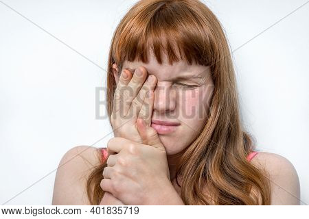 Woman With Eyes Pain Is Holding Her Aching Eye - Body Pain Concept