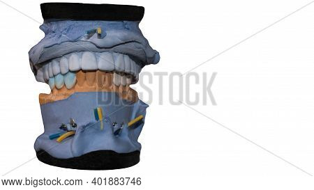 Ceramic Crown Of A Tooth On A Plaster Model Of The Teeth Is Isolated On A White Background, The Work