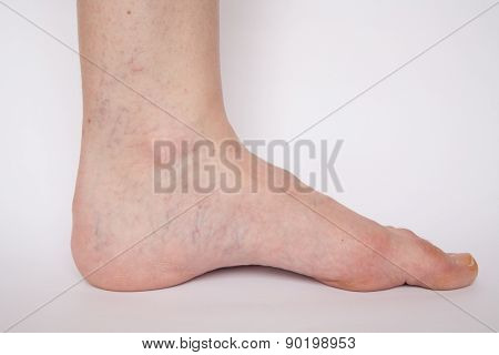 Varicose veins closeup foot on modular bath step image isolated on white background poster