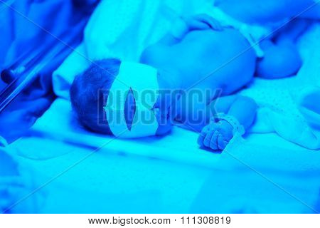 Two days old newborn baby having photo theraphy under blue UV light