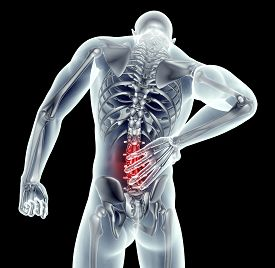 X-ray Image Man With Back Pain With Clipping Path