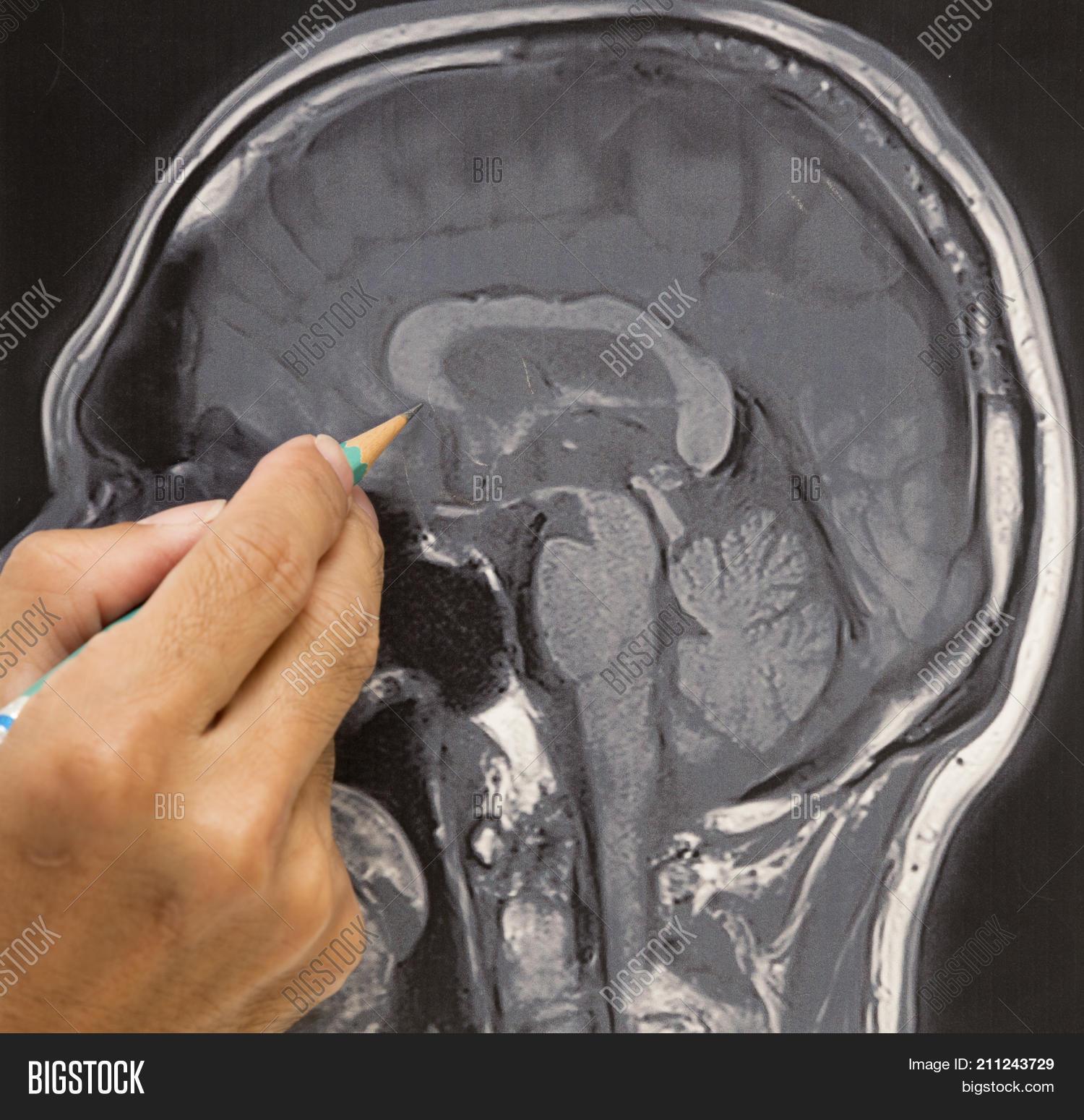 Doctor Teaching Image & Photo (Free Trial) | Bigstock
