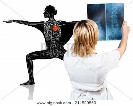 Female doctor looks on x-ray of sporty woman. Isolated on white.