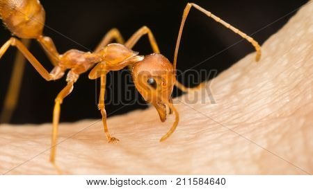 Macro Of Ant (red Ant) Biting On Human Skin