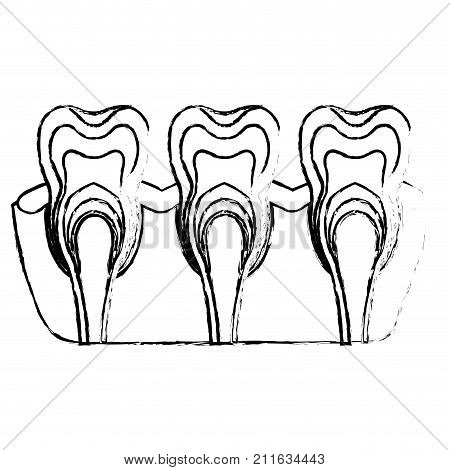 teeth with nerve and tooth root view in monochrome blurred silhouette vector illustration