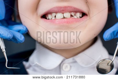 Boy Showing Teeth At Dental Check Up. Close-up Of Dentist's Hand With Dental Tools - Probe And Mirro