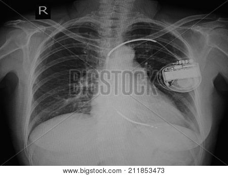 Chest x-ray image of permanent pacemaker implant in body chest.