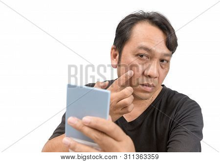 Middle-aged Asian Man Applying Cream Onto Face With Melasma Or Blemish And Brown Spots. Skincare Or