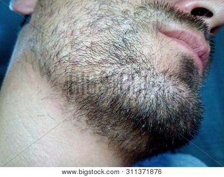 Bearded Young Man, Stubble Near. Unshaven More Than A Week. Hair On The Face Of A Man, A Short Beard