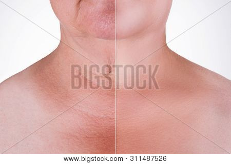 Skin rejuvenation on the neck, before after anti aging concept, wrinkle treatment, facelift and plastic surgery, half of body isolated on white background poster