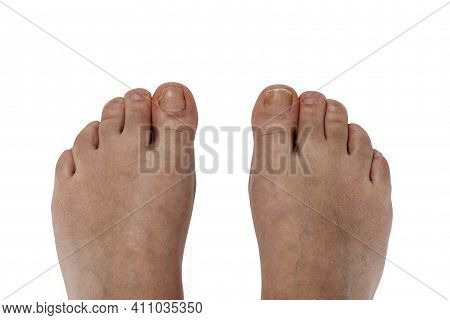 Unkempt Feet Without A Pedicure. Thumbnail Cut In Half. Isolated On White Background. Close-up. Top