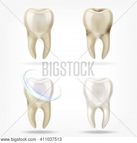 Vector Set Of 3d Realistic Clean And Dirty Tooth , Clearing Tooth Process. Oral Care, Teeth Restorat