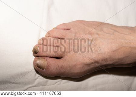 Toenails Of Men Of Retirement Age Are Delaminated Due To Age, Affected By Fungus