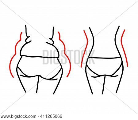 The Female Body Before And After Losing Weight. Silhouette. Vector Illustration.