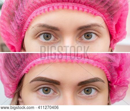 Close Up Photo Comparison Before And After Permanent Make Up. Tattooing Of Eyebrows For Woman In Bea