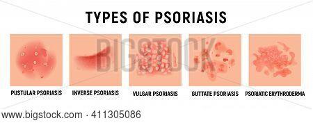 Psoriasis Rash Vector Skin Hand Infection Background. Psoriasis Dermatitis Eczema Cartoon Illustrati