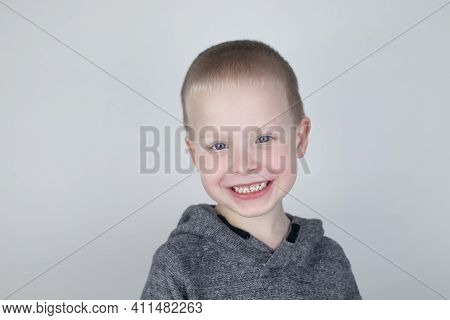 Close-up Of A Blond Boy Who Smiles Into The Frame. White Milk Teeth. Perfect Smile. The Concept Of P