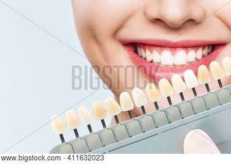 Smiling Young Woman. Cosmetological Teeth Whitening In A Dental Clinic. Selection Of The Tone Of The