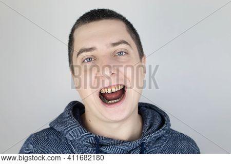 The Man Has Rotten Teeth, Teeth Fell Out, Yellow And Black Teeth Hurt. Poor Teeth Condition, Erosion