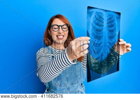 Beautiful redhead woman holding chest radiography sticking tongue out happy with funny expression.
