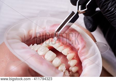 Close Up Of Orthodontist Putting Braces On Woman Teeth. Patient With Cheek Retractor In Mouth And Or