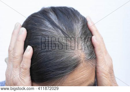 Close Up Old Woman Hair Loss And Gray Hair With White Background, Health Care And Medical Concept
