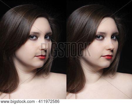 Woman Moustache Treatment Concept. Collage Portrait Of Young Woman Before And After Moustache Removi