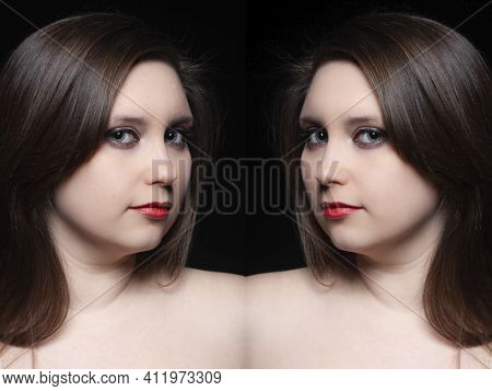 Woman Moustache Treatment Concept. Mirror Collage Portrait Of Young Woman Before And After Moustache