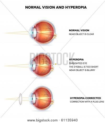 Hyperopia and normal vision. Hyperopia is being farsighted. Illustration shows hyperopia corrected with a plus lens. Anatomy of the eye cross section. Detailed illustration. poster