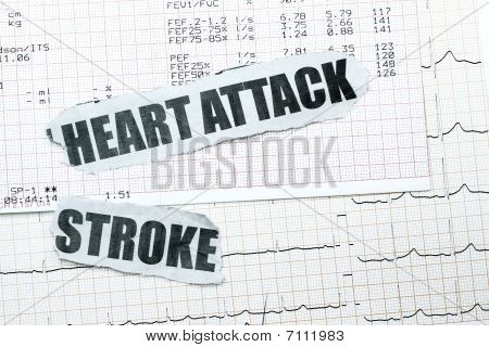 Heart Attack And Stroke