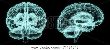 X-ray Front And Side Brain