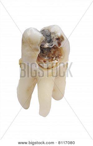 tooth dental caries
