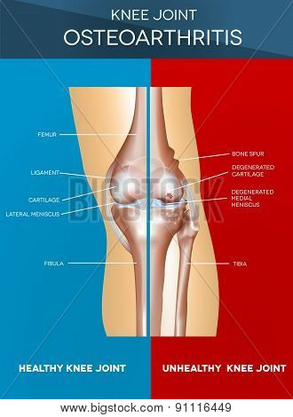 Osteoarthritis And Normal Joint