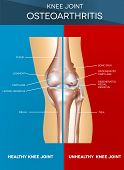 Osteoarthritis and normal knee joint colorful design healthy half of the joint on a blue background and unhealthy on a red. poster