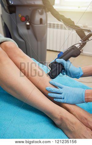 laser legs epilation