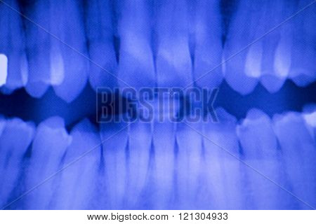 Dental Teeth Filling Dentists Xray Scan
