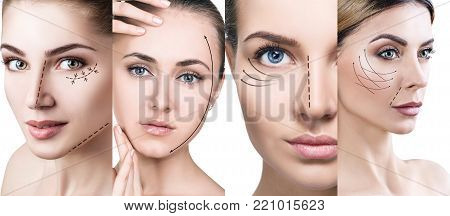 Collage of woman's faces with lifting arrows. Isolated on white. Plastic surgery concept.