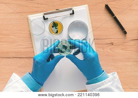 Overhead view of laboratory technician analyzing growing bacterial cultures in petri dish, science and microbiology background