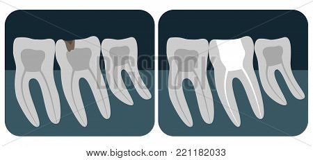 Panoramic Dental X-ray. 32 Healthy Tooth On X-ray. Vector Illustration.
