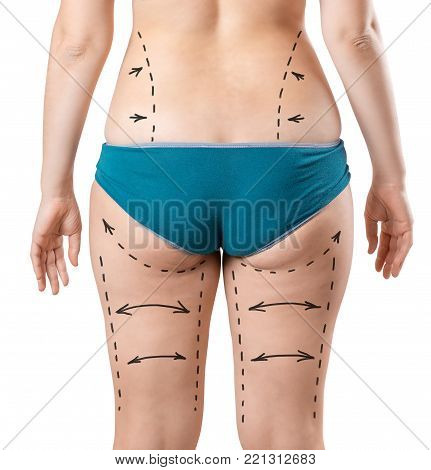 Plastic surgery of the female body. Liposuction of hips, legs, ass, waist. Drawing arrows and lines with perforation for preparation for surgery. Thick woman in underwear isolated on white background
